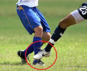 Shin Guards Protect The Lower Leg